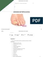 Болезни ногтей на ногах - Просто о технологиях