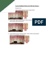 Gambaran Klinis Menurut Klasifikasi Fraktur Dari Ellis Dan Dewey