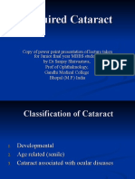 Acquired Cataract