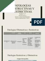 Patologías Restrictivas y Obstructivas. Bronquitis, Bronquiectasias.