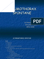 cupdf.com_pneumothorax-spontane-55849a169d557