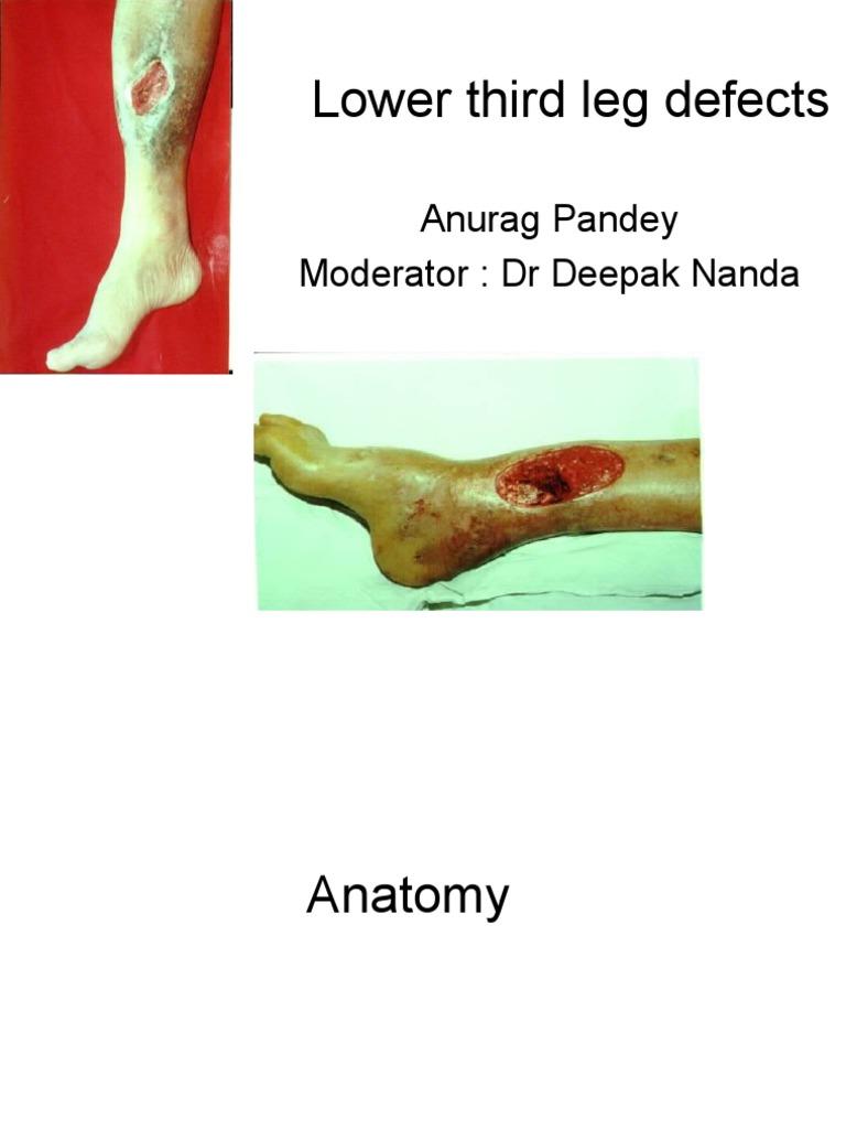 lower leg defects | Lower Limb Anatomy | Limbs (Anatomy)