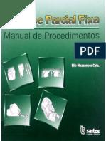 Prótese Parcial Fixa Elio Mezzomo_43862674