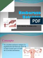 emb ectopico