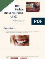 1. Lesiones Pigmentadas de la Mucosa Oral