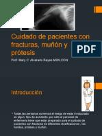 Cuidado de pacientes con fracturas, muñón
