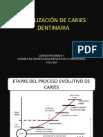 ESTABILIZACÍON DE CARIES DENTINARIA (2) (2)