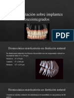 12 Rehabilitacion Sobre Implantes