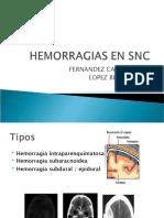 HEMORRAGIAS_EN_SNC[1]