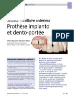 Prothèse implanto porté