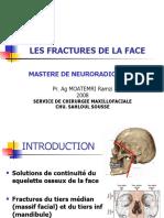 les_fractures_de_la_face
