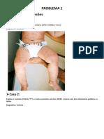 Anotações Dermatologia - Doencas exantematicas