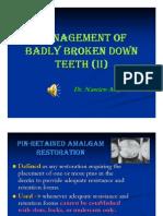 Management of Badly Broken Down Teeth II