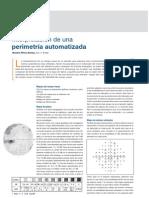 Interpretación de una perimetría automatizada - CNOO