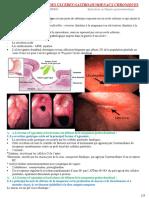 06-PHYSIOPATHOLOGIE DES ULCERES GASTRO-DUODENAUX CHRONIQUES