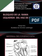 BLOQUEO DE RAMA  IZQUIERDA ROSSY