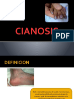 CIANOSIS
