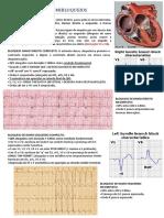 ECG BLOQUEIOS E HEMIBLOQUEIOS