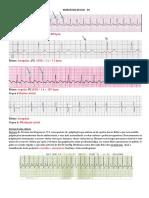 367811050 Exercicios de ECG Gabarito