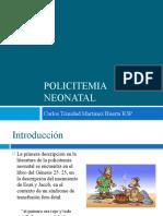 Policitemia neonatal v2