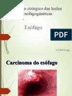 Trat. Cirúrgico de lesões malignas esofagogástricas