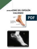 SÍNDROME DEL ESPOLÓN CALCÁNEO