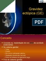 Gravidez Ectopica