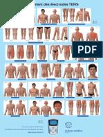 Poster placements des électrodes TENS 2015