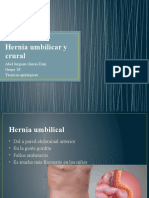 Hernia umbilicar y crural