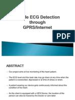 Mobile ECG Detection through