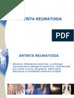 artrita reumatoida diagnostic