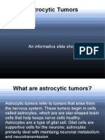 Astrocytic Tumors