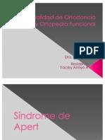 sindrome apert
