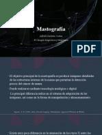 Mastografía - Alfredo Iracheta