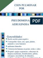 Infeccion Pulmonar por Pseudomona