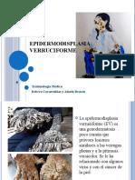 Epidermodisplasia verruciforme