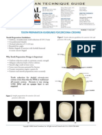 tooth-preparation-guidelines-for-zirconia-crowns