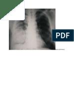 abces pulmonary