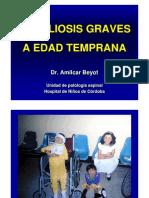 Escoliosis Graves en Edad Temprana