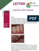 Periodontite vs Peri Implantite