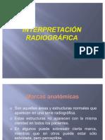 Interpretación radiográfica