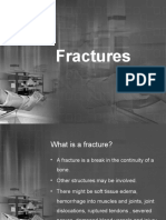 Fracture and Casts Updated 2011