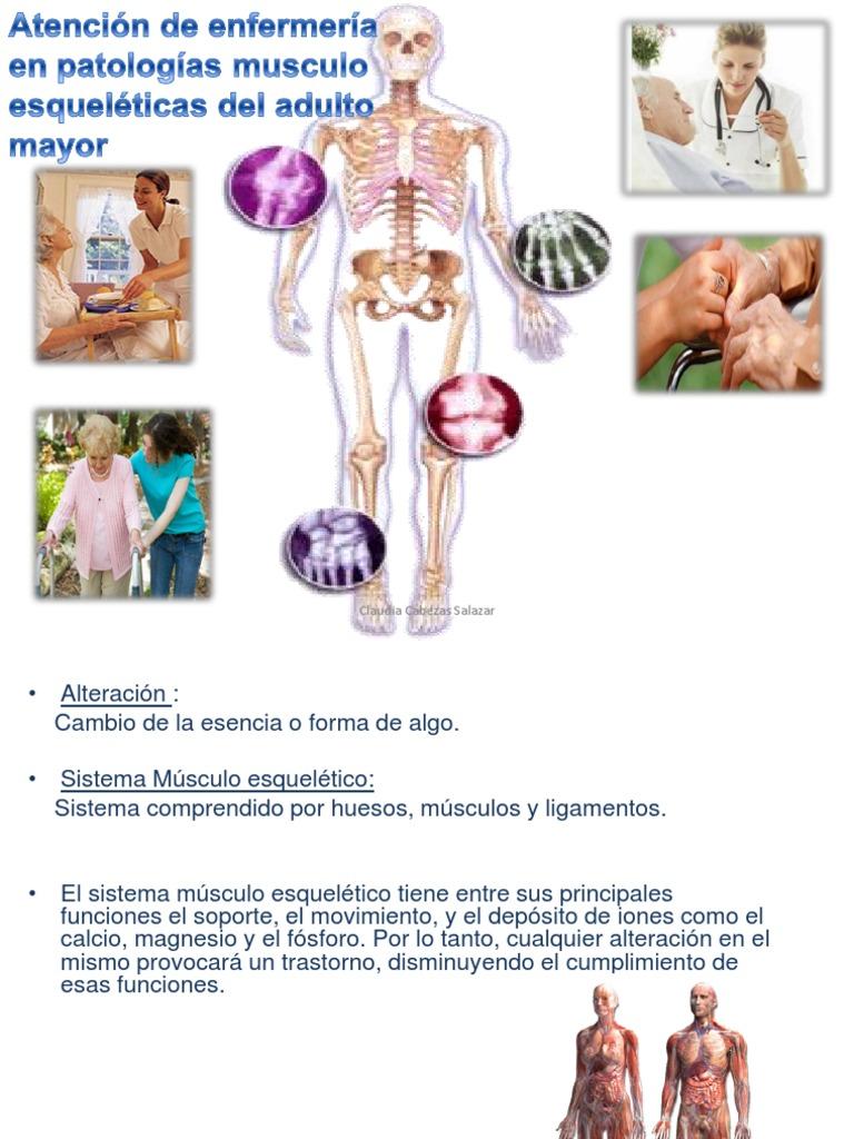 Patologias Musculo-esqueleticas en El Adulto Mayor