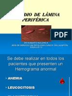 Estudio de Lámina Périferica-dr roldan