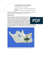 Distraccion Osteogenica de La Mandibula