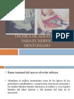TÉCNICA DE ANESTESIA PARA EL NERVIO MENTONIANO