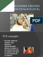 Traumatismo Cráneo Encefálico (TCE)