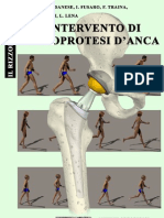 artroprotesi d'anca