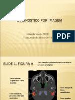 DI slides