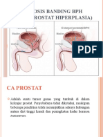 Diagnosis Banding BPH Ppt